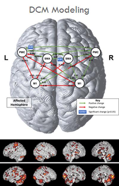 neurology image